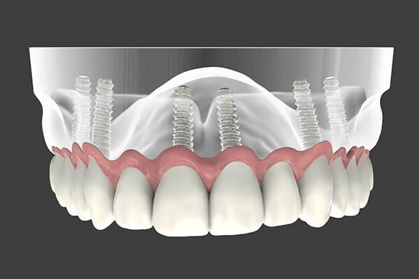 Implant Supported Dentures illustration