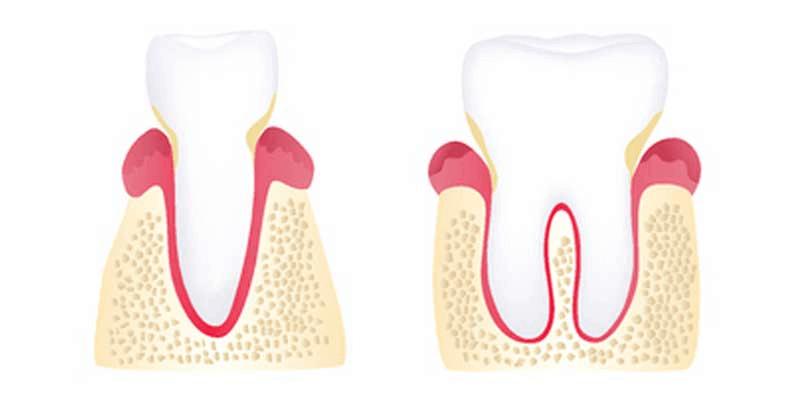 Early periodontitis illustration